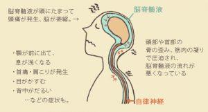 nousekizui1