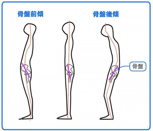 骨盤の前傾と正常と後傾の図です。あなたはいったいどのタイプでしょうか?正常タイプのあなたは疲れ知らずのはず!