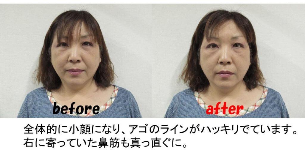 小顔矯正施術例1