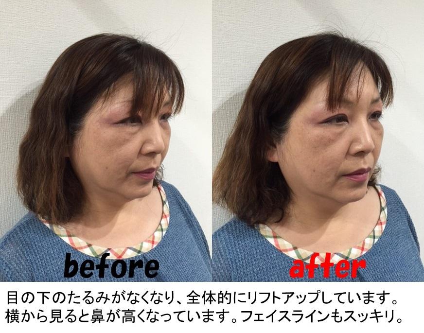 小顔矯正施術例1-1
