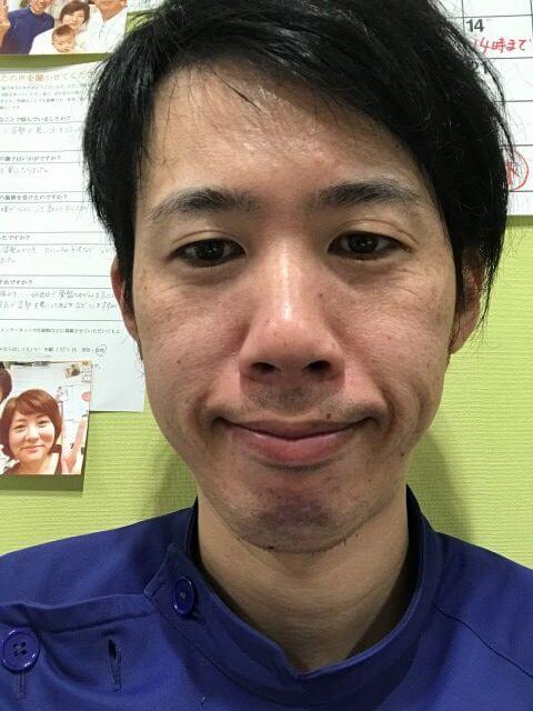 口角が上がっている写真久留米整体