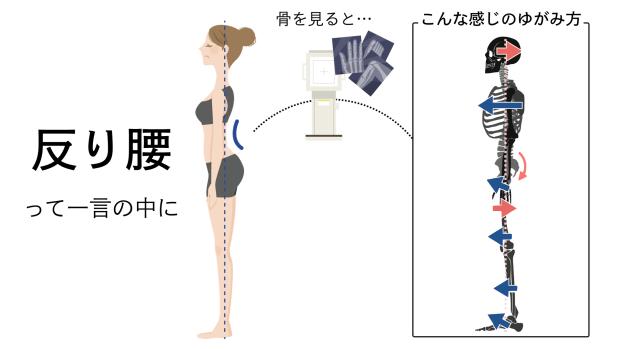反り腰の猫背のイラスト
